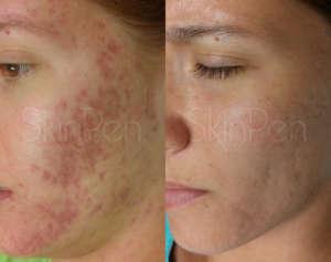 microneedling-skin-pen-treatments-norwich-norfolk