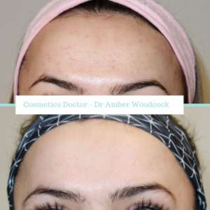 Patient with glowing skin after Acne Treatment